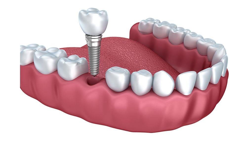 Single-Implant-Crown